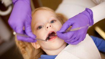 dite-zubar-zubni-prohlidka-hygiena-istock_000015182165small-352x198.jpg