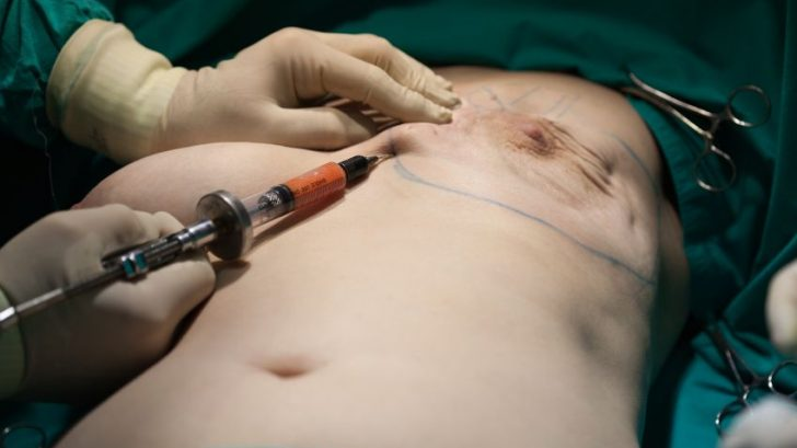 prso-rekontrukce-operace-plasticka_chirurgie-plastika-istock_000023908641small-728x409.jpg